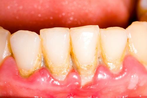 Sau khi sinh con cạo vôi răng được không?