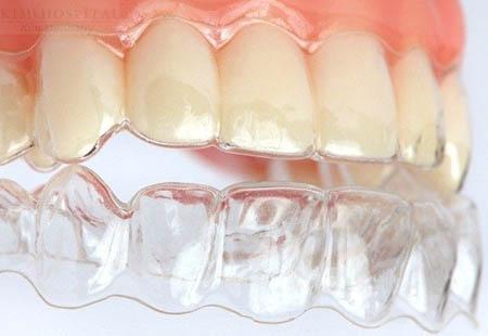 Tác dụng của hàm duy trì sau khi tháo niềng răng