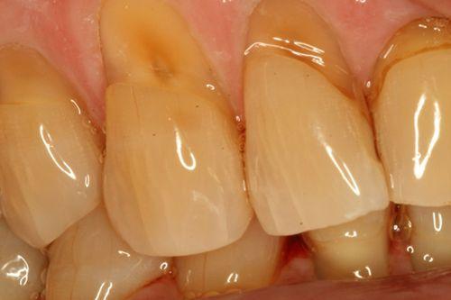 Tại sao bị mòn cổ chân răng ?
