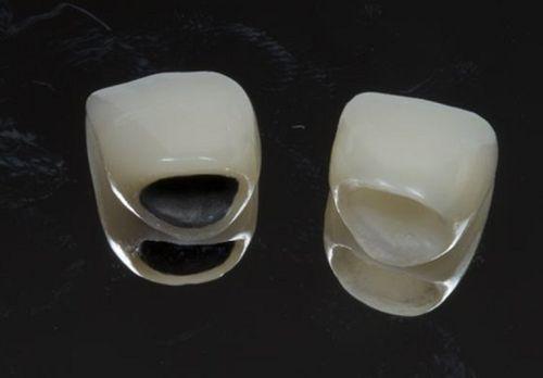 Tại sao bị mòn cổ chân răng?