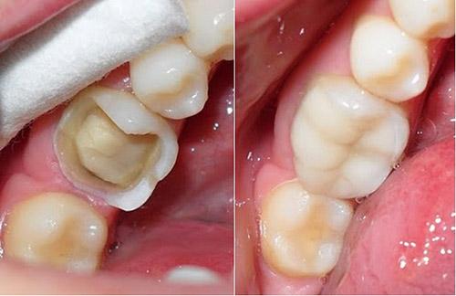 Tại sao phải khám răng định kỳ?