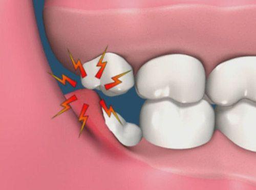 Tại sao răng khôn khi mọc thường gây đau nhứt