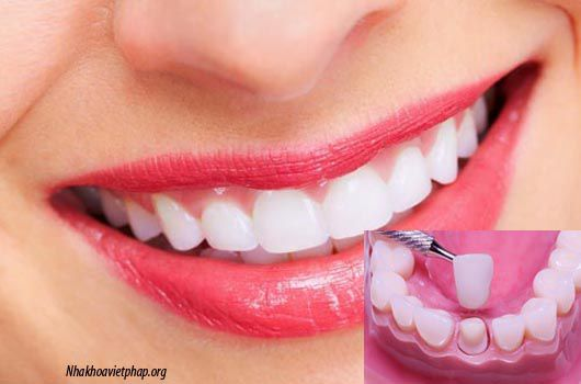 Tại sao sau lấy tủy phải bọc răng sứ ?