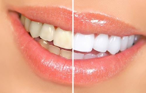Tẩy trắng răng an toàn và hiệu quả