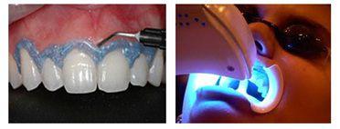 Tẩy trắng răng bằng đèn laser