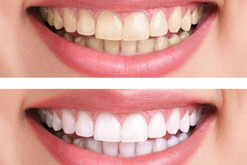 Tẩy trắng răng bằng laser whitening có hại không ?