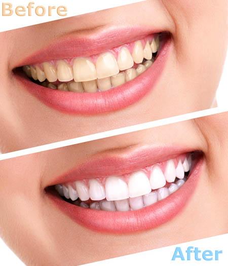 Tẩy trắng răng bằng đèn plasma