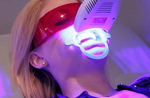 Tẩy trắng răng bằng laser whitening bao nhiêu tiền ?