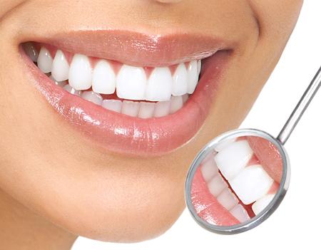 Tẩy trắng răng có đắt không ?