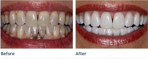 Tẩy trắng răng giá bao nhiêu tiền ?