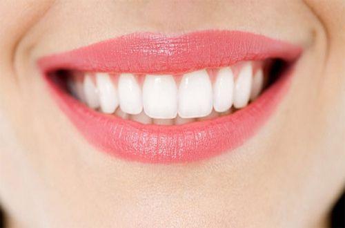 Tẩy trắng răng tại nhà an toàn