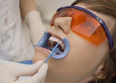 Tẩy trắng răng luôn có được không ?