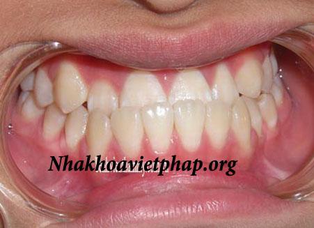 Thời gian niềng răng móm trong bao lâu ?