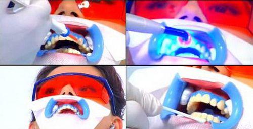 Thời gian tẩy trắng răng bao lâu?