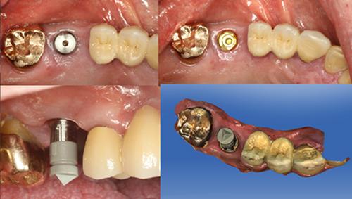Thời gian trồng răng implant mất bao lâu ?