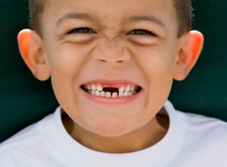 Trẻ thay răng sữa chậm
