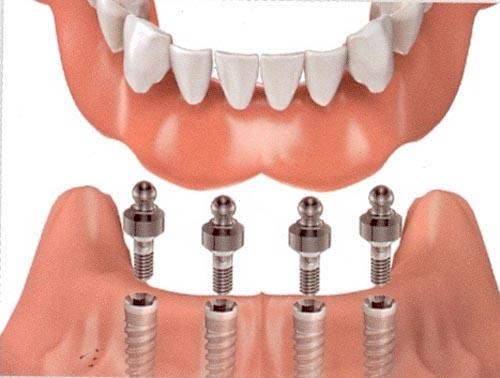 <br/<br /><br/ Trồng răng implant có đau không ?