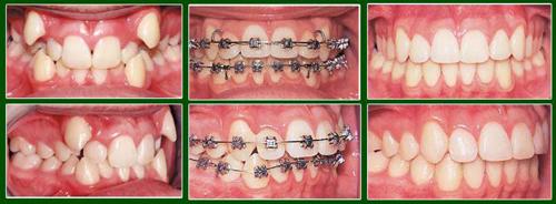 Trồng răng khểnh nên hay không?