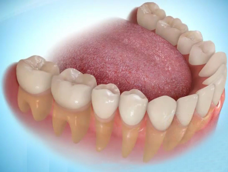 Trồng răng sứ có đau không?