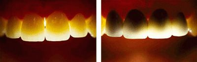 Trồng răng sứ giá bao nhiêu tiền?