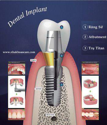 Tỷ lệ thành công của cấy ghép implant
