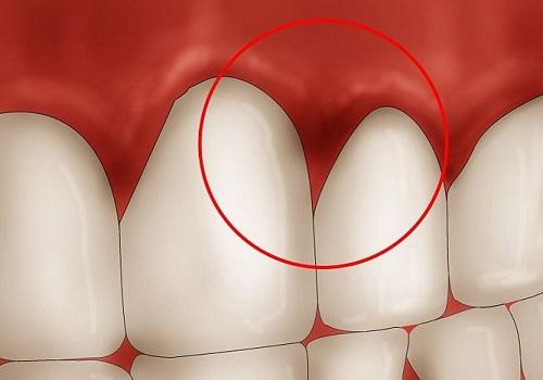 Viêm chân răng có nguy hiểm đến sức khỏe không?