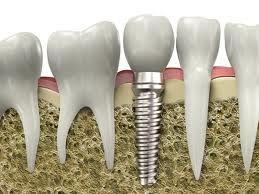 Yếu tố quyết định thành công của cấy ghép implant